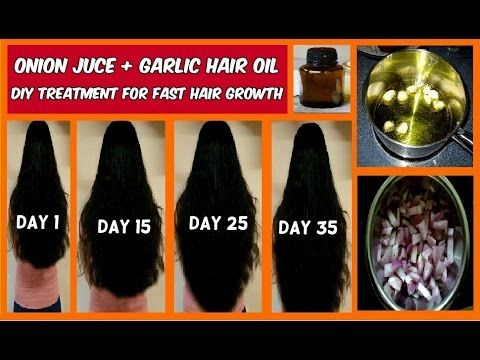 Stop HAIR LOSS with GARLIC HAIR OIL | Fast Hair Growth in 30 days for Longer Thicker Natrual Hair - YouTube