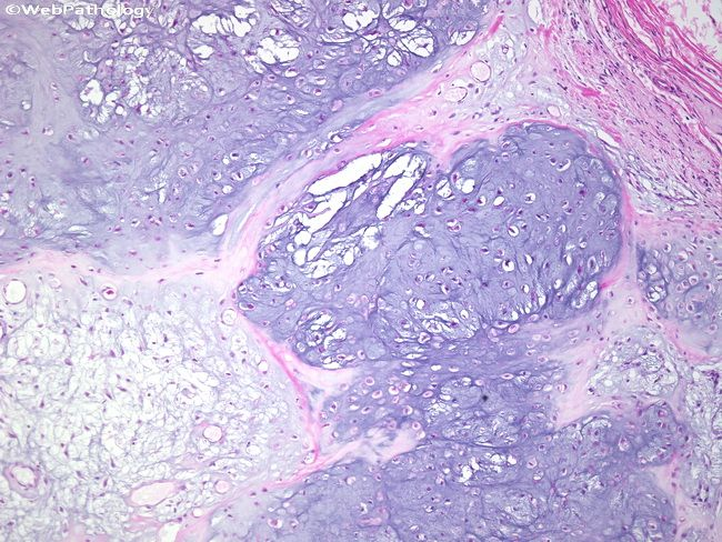 Chondroma = lobules of hyaline cartilage.  ENchondroma is in medulla, PERIosteal is on the surface.