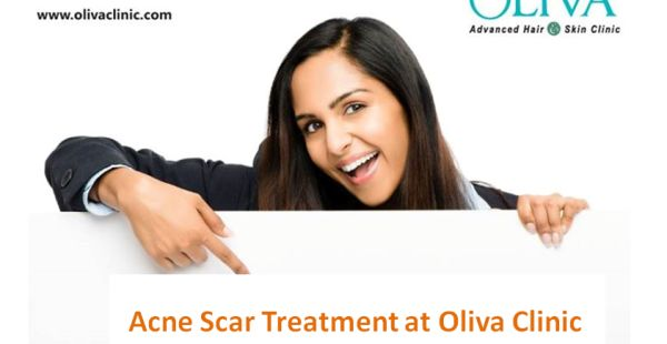 https://www.olivaclinic.com/blog/treatment-acne-scars-bangalore-differs-with-type/