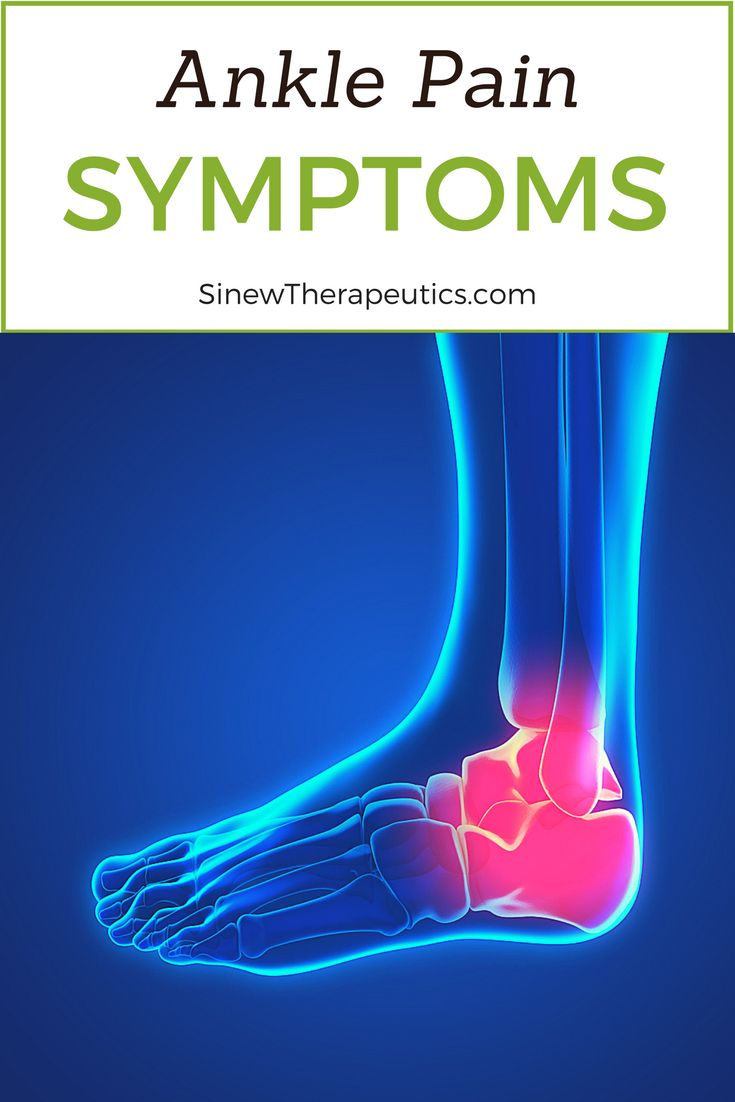 Best 25 Ankle Pain Ideas On Pinterest Trigger Points