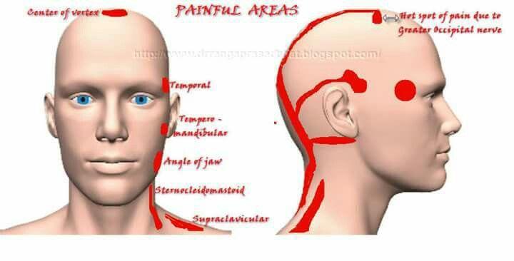 Occipital neuralgia cause facial pain