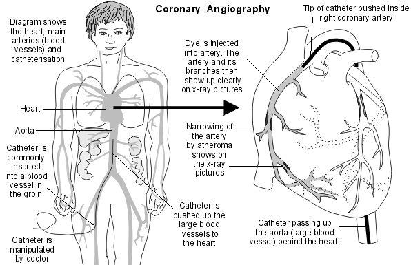 Best 25+ Cardiac catheterization ideas on Pinterest
