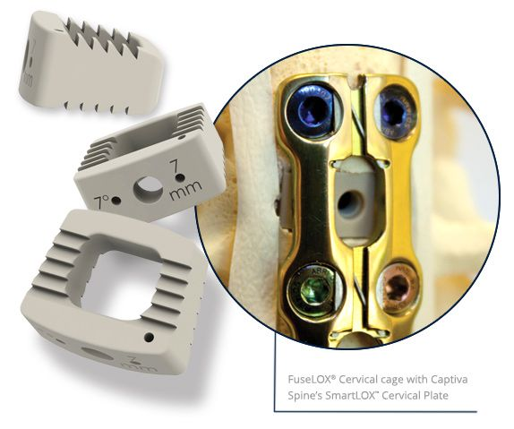 FuseLOX Cervical Cage and SmartLOX Cervical Plate