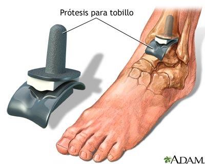 REEMPLAZO DEL TOBILLO. Artroplastia o reemplazo de tobillo:   La artroplastia o reemplazo de tobillo implica la sustitución de partes dañadas de los tres huesos que componen la articulación maleolar, con partes de una articulación artificial (componentes protésicos) hechos de metal y plástico de alta calidad. Las partes se fijan de manera específica por medio de cemento para hueso. Las articulaciones artificiales vienen en diferentes tamaños para ajustarse al paciente. (University of…