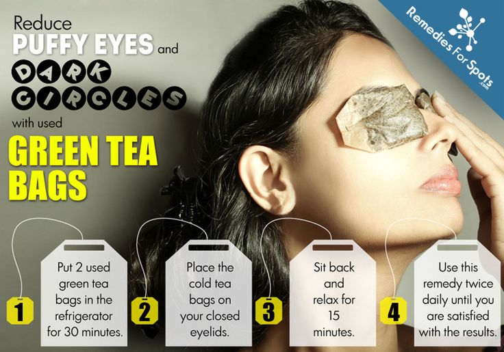 Using Green tea bags can be a relaxing remedy for under eye puffiness and dark circles. #BeautyTip  #EyePuffiness #DarkCircles #HomeRemedies