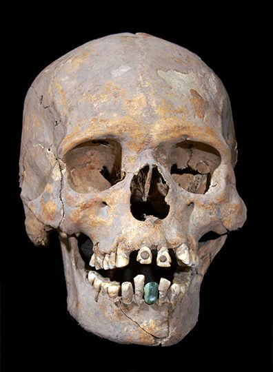 Burial of a woman at Teotihuacan with a jadeite tooth that was cemented or attached with fiber to her mandible