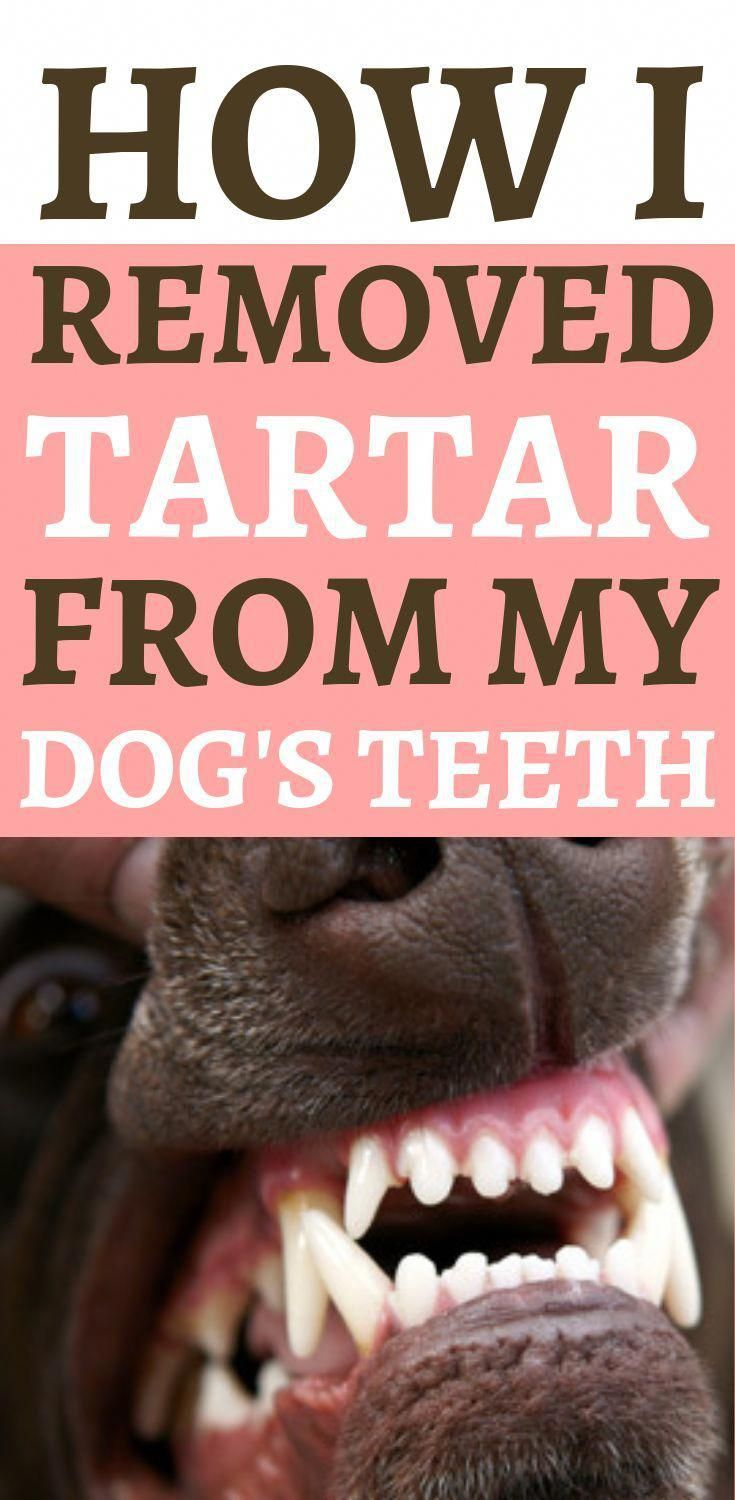 how to remove tartar and plaque at home