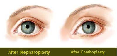 Avoiding the Wrong Eyelid Surgery