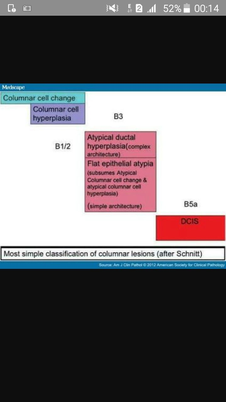 Columnar cell lesions