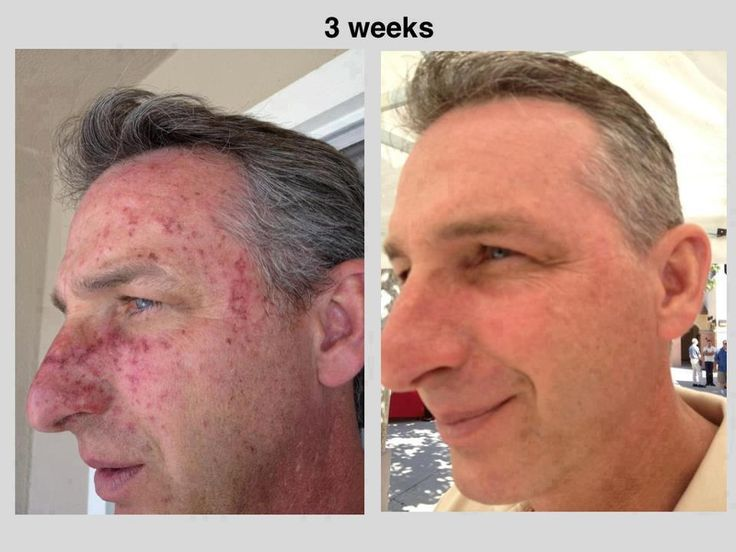 By just applying Luminesce serum and drinking Reserve for anti-inflamation, he had a miraculous recovery in just 7 days.