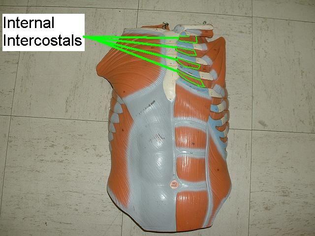 43 best Intercostal Chondritis (aka Costochondritis ...