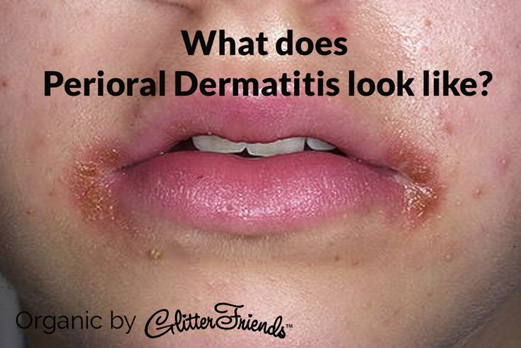 *Perioral dermatitis presents as multiple red pimple-like bumps that tend to group around the mouth, nose and chin. The skin around the eyes is occasionally affected. *If the lip area is affected, the lip line is classically spared. *The overlying skin may be red, dry and flaky. *This condition is more common in women than men. Children can also be affected. *Perioral dermatitis may be symptomless however burning, tightness and itchiness are common.