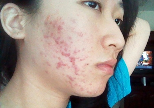 Check out http://acne-treatments-bible.com/acne-scars/acne-scarring for acne scars treatment and the best solutions for acne scarring