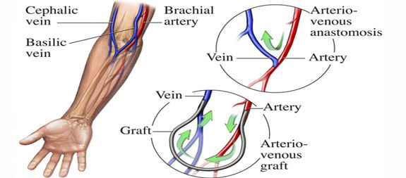 Av Fistula Vs Graft Arteriovenous fistula vein Wound