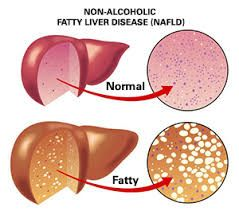 Dr. Berookim specializes in treating fatty liver disease.  Contact his Beverly Hills facility to schedule a consultation.