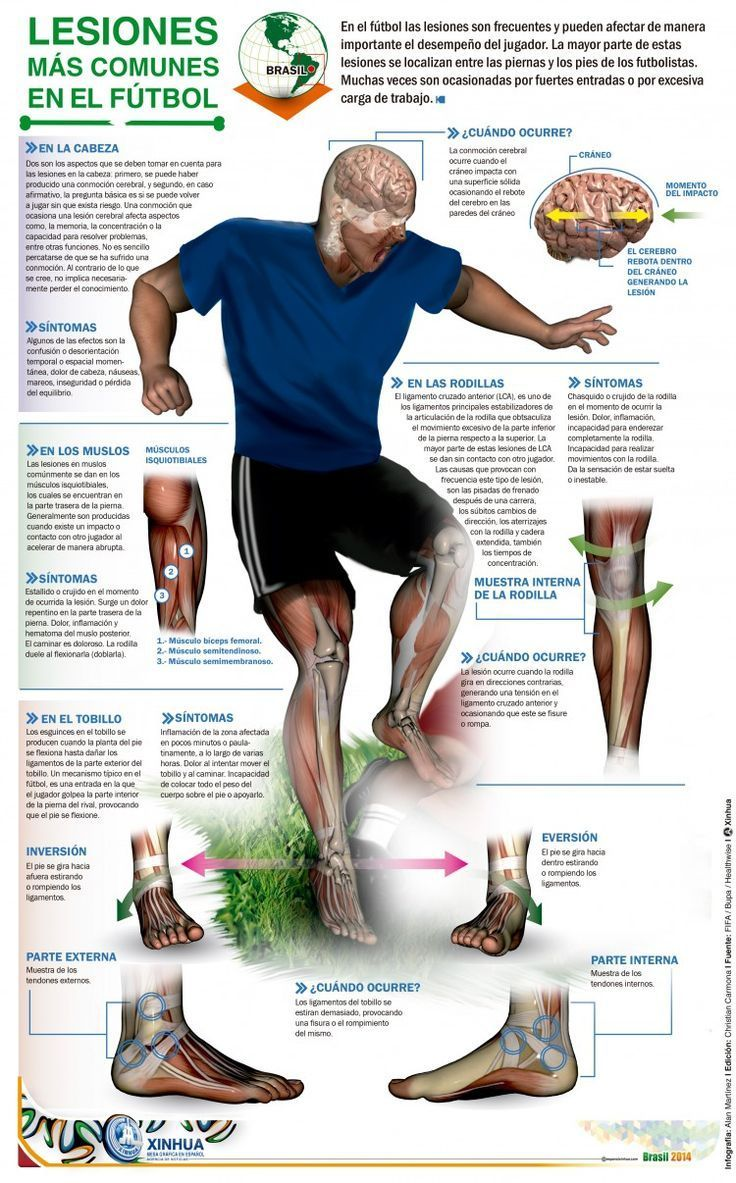 Common Injuries In Soccer Common Soccer Injuries Soccer Injury Care Soccer Injuries Soccer Training Top Soccer