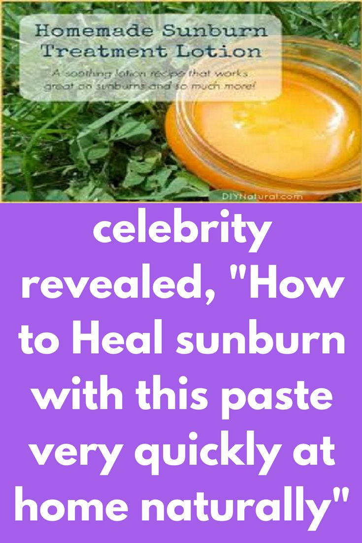"celebrity revealed, ""How to Heal sunburn with this paste very quickly at home naturally "" Today I will share how to get rid of sunburn. This is a full face mask as well as body mask. Ingredients you will need – 1 tablespoon of yogurt 10-12 blueberries 3-4 black tea bags Method – 1. Firstly in a bowl add 10-12 blueberries and mash them up really well. Then add 1 …"