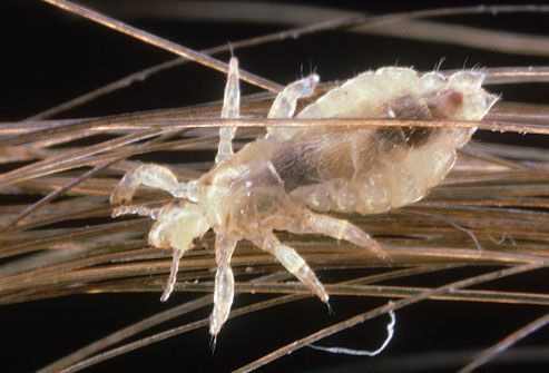 How Do I Get Rid of All of the Head Lice in My House?