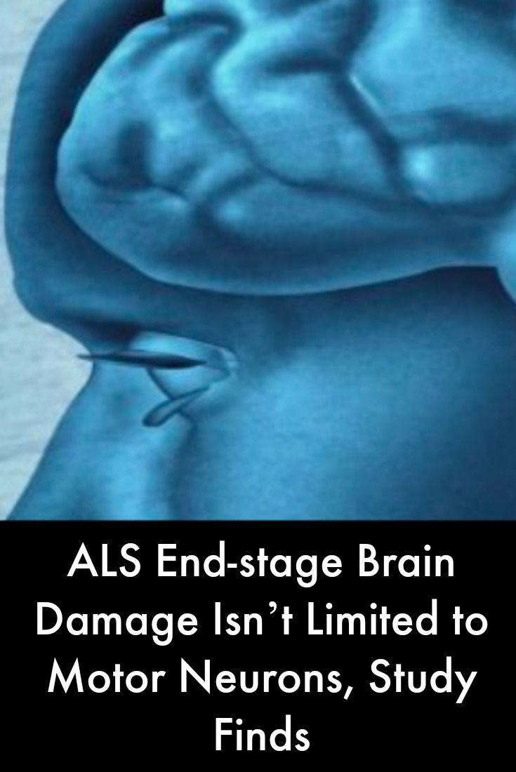 The 25 best motor neuron ideas on pinterest pre primary als end stage brain damage goes beyond motor neurons study finds robcynllc Choice Image