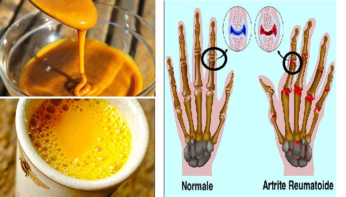 Ecco la potente mistura capace di combattere Artrite reumatoide e Dolori Articolari e non solo!... http://salutecobio.com/mistura-alla-curcuma-combatte-artrite