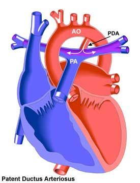 PDA... another heart defect Fischer was born with. Turned out to actually help him!