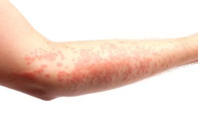 Finding Relief for Hives | DrDeborahMD.com