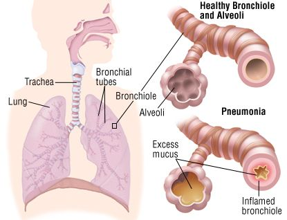 Perfect Health Forum: 44. Pneumonia Causes and Treatment