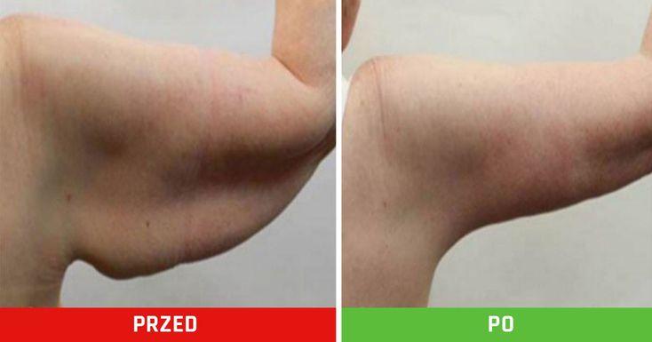 Masz obwisłą skórę na ramionach? Te ćwiczenia pomogą Ci odzyskać jej jędrność!