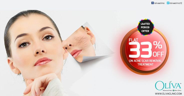 Are you suffering with #acnescar on your face? Acne away the acne scars with holistic treatment scar removal at Oliva Clinics. Avail Flat 33% Discount on acne scar treatments. Rush today to any of your nearest Oliva Clinics to avail this 6th Anniversary special limited period offer.    or call 1800-103-3893  for book your appointment or to know about the exciting offers on other services.