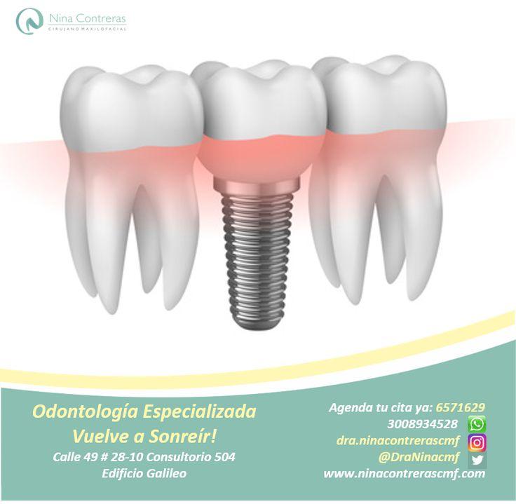 Cuida tu sonrisa - Especialistas en Implantes y Prótesis Dentales! Atrévete a generar cambios y déjanos conocer tu caso: 6571629 - WhatsApp: 3008934528 http://ninacontrerascmf.com/