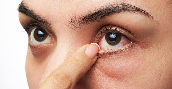 Finding a cure for dry eyes is a very broad question, largely because of the many different causes of dry eye. Here's a look at some of the most common causes and their treatments.