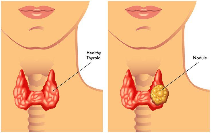 que alimentos evitar para perder grasa abdominal