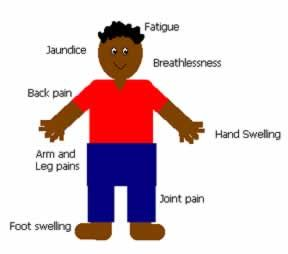 Do you know the common symptoms of sickle cell disease? This diagram is helpful in understanding what your child might be feeling.