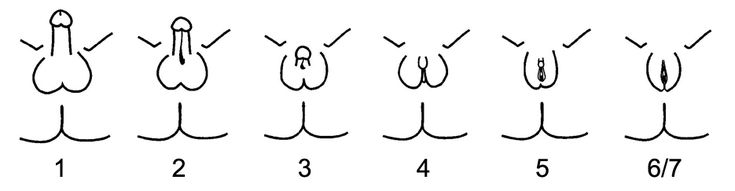 """English: Schematic representation of the Quigley scale for grading androgen insensitivity syndrome. Grades 2 through 5 quantify four degrees of increasingly feminized genitalia that correspond to PAIS. Grades 1 and 6/7 correspond to MAIS and CAIS, respectively. Original work, adapted from figure 8 of """"Androgen receptor defects: historical, clinical, and molecular perspectives."""":"""