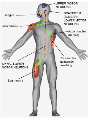 #Motor #Neuron #Disease- Amyotropic Lateral Sclerosis
