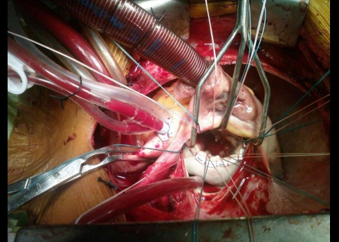 Operating Room open heart valve replacement  Operating