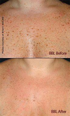 Forever Young BBL WV | Laser Skin Rejuvenation Martinsburg West Virginia | Photofacial