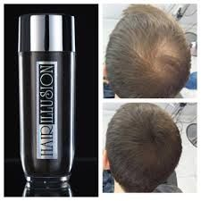 Hair Illusion Natural Hair Concealer for Men and Woman