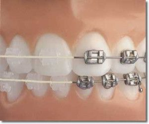 how to get straight teeth fast without braces
