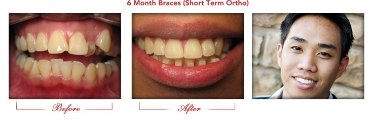 Dr Kelly Wettstein is a Recognized 6 Month Braces Provider. We know how to improve your smile discreetly!