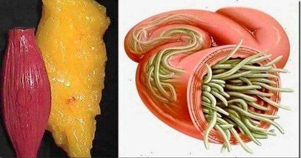 Użyj tych 2 składników, a pozbędziesz się wszelkich złogów tłuszczu i pasożytów z organizmu!
