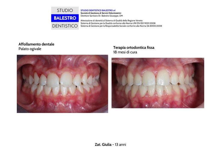Casi clinici ortodontici Palato ogivale http://www.studiodentisticobalestro.com/2017/07/palato-ogivale.html