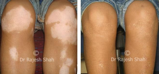Vitiligo Diet: What Foods to Avoid in Vitiligo Skin Disease, Explained by Dr Rajesh Shah