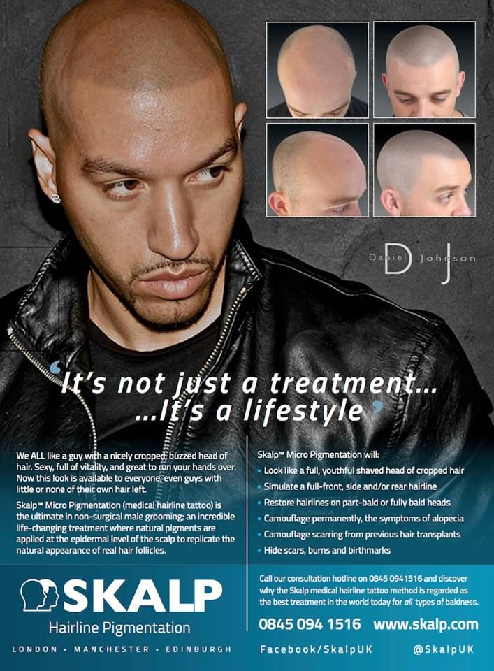 Hairstylist to the celebrities Daniel Johnson after #medical #hairline #tattoo at #Skalpuk