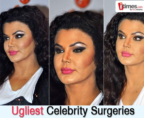 They have all denied going under knife to look beautiful, but these pics tell us different story. Click here to see ugliest celebrity surgeries. Click here