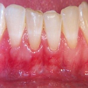 Top 5 Home Remedies For Receding Gums