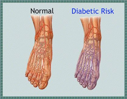 list of foods to prevent uric acid how to treat acute gout pain symptoms of high uric acid level in the body