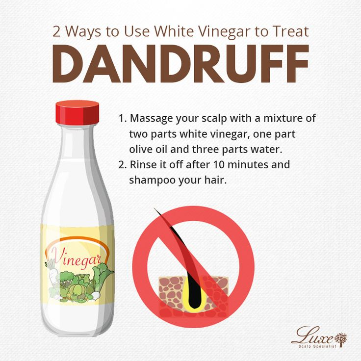 You think vinegar is only for cooking? It can remove your dandruff too! Actually, white vinegar is one of the best home treatments for dandruff. It contains acetic acid that prevents fungi from growing on your scalp. Here's how you can use vinegar to treat your dandruff. Do either of these remedies once or twice a week.  Book your appointment now! Contact us at: 67020777 (Novena Square 2) 65551065 (Tampines 1) 65091911 (Yew Tee Point)