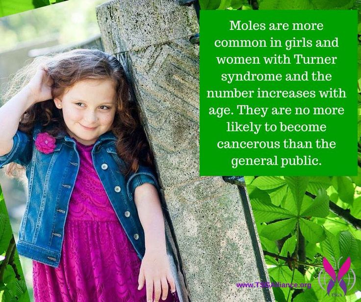 turner syndrome hormone Turner know your body, chapter 3: growth hormone (gh) treatment girls with ts do not lack growth hormone but appear to be less sensitive to the effects of gh in the body gh is a protein that is produced in the pituitary of every human being.