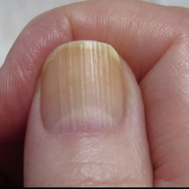 Ridged Nails http://greatist.com/live/what-nails-reveal-about-health